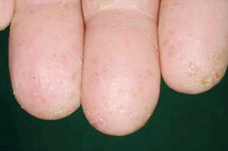 汗 疱 状 湿疹