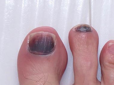 爪 下 血腫 爪の内出血(爪下血腫)の原因と治し方!予防法もご紹介!